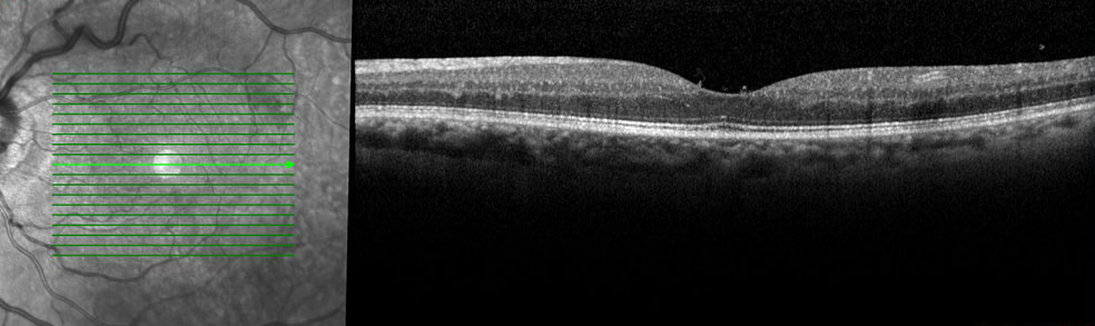 slecht zicht na vitrectomie